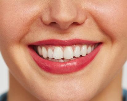 teeth after - orthodontist