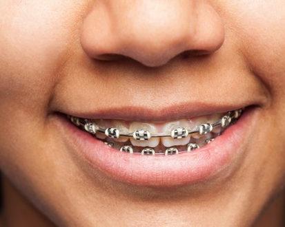 teeth before - orthodontist