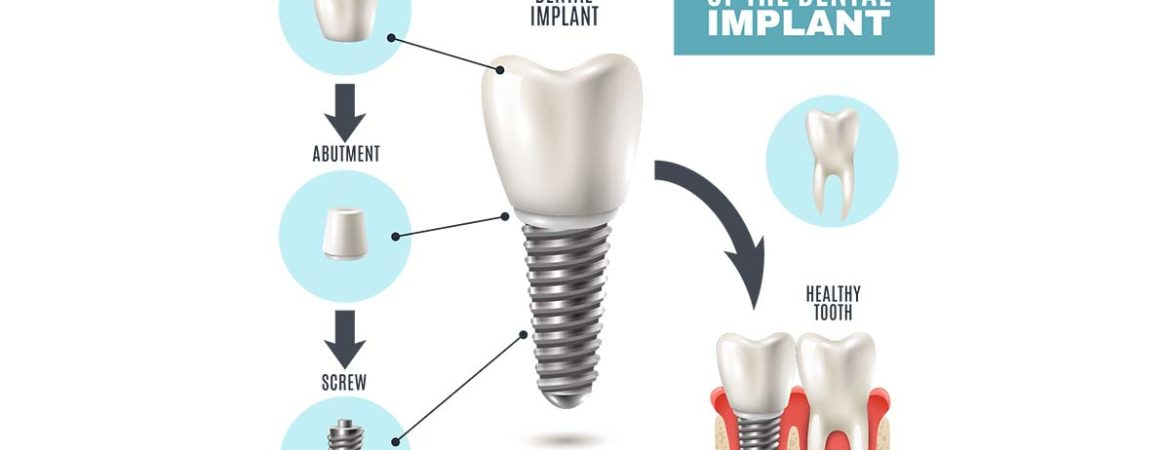 Dental Implant Structure and Costs