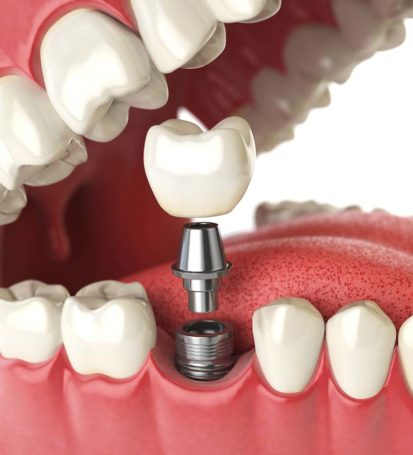 Dental Implants costs Birmingham