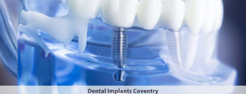 Dental Implants Coventry
