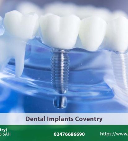 Dental Implants Coventry