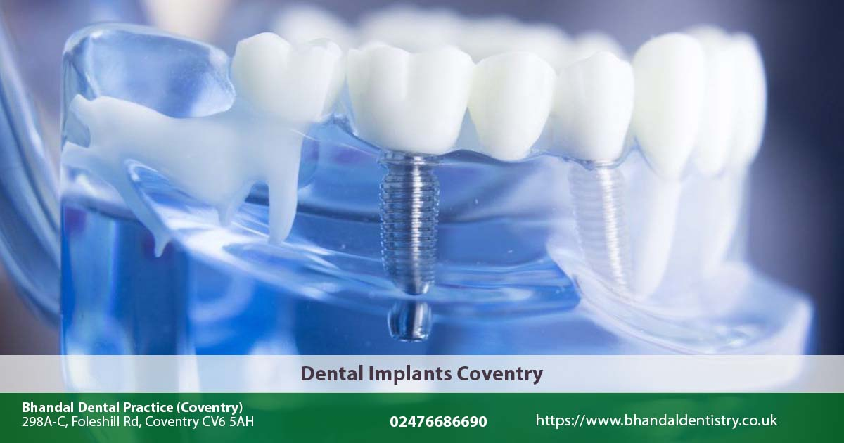 Dental Implants Cost Per Tooth Uk Dental Treatment Central
