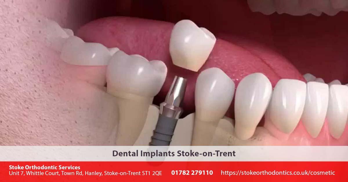 Dental Implants Stoke-on-Trent